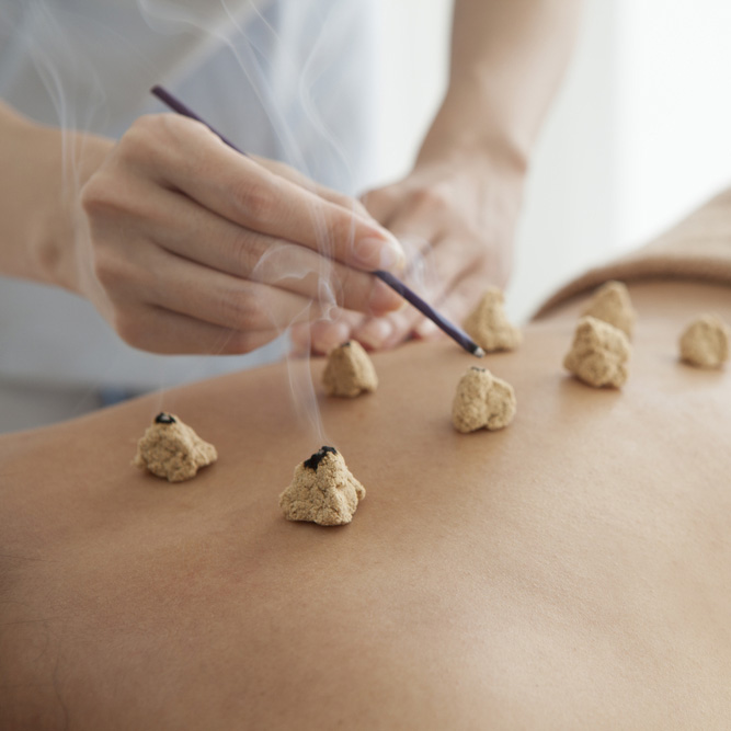 acupunctuur Zhong Jiao